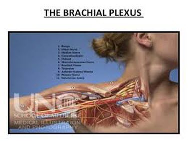brachial plexus thoracic outlet syndrome neck pain Orlando