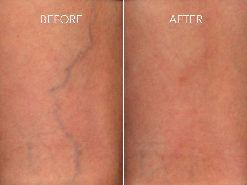 What is Best Treatment to Remove Spider Veins from Face