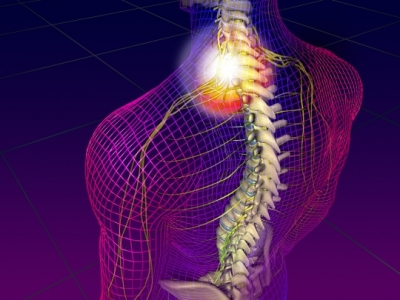 Pinched Nerve Treatment Orlando
