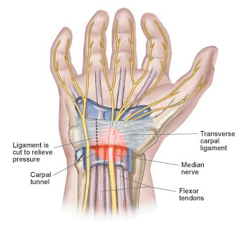 carpal tunnel symptoms / Neuromuscular Pain Relief Center