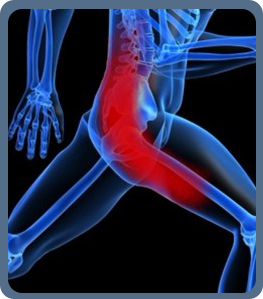 Sciatic Treatment Orlando