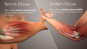 Elbow Tendonitis Orlando