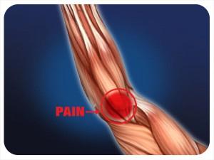 Tendinitis Orlando Elbow Pain