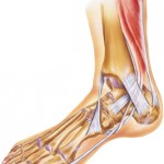Achilles Ankle Treatment Orlando
