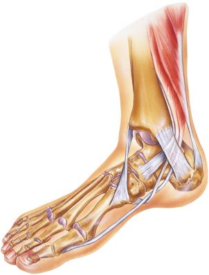 Achilles Ankle Treatment Orlando