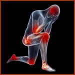 Rheumatoid Arthritis Orlando