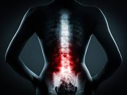 Winter Park Non-Surgical Back Pain Treatment