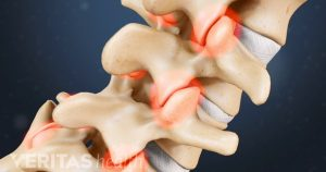 Natural Herniated Disc Treatment Orlando