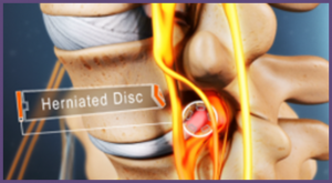 Herniated Disc Treatment Orlando